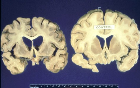 human-brain-with-mad-cow-474x300.jpg